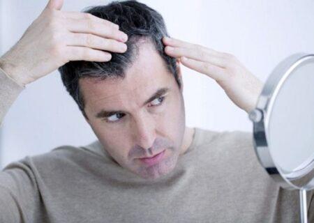 عواملی که موجب ریزش مو میشود