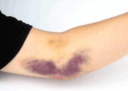 علت کبودی روی بدن چیست؟