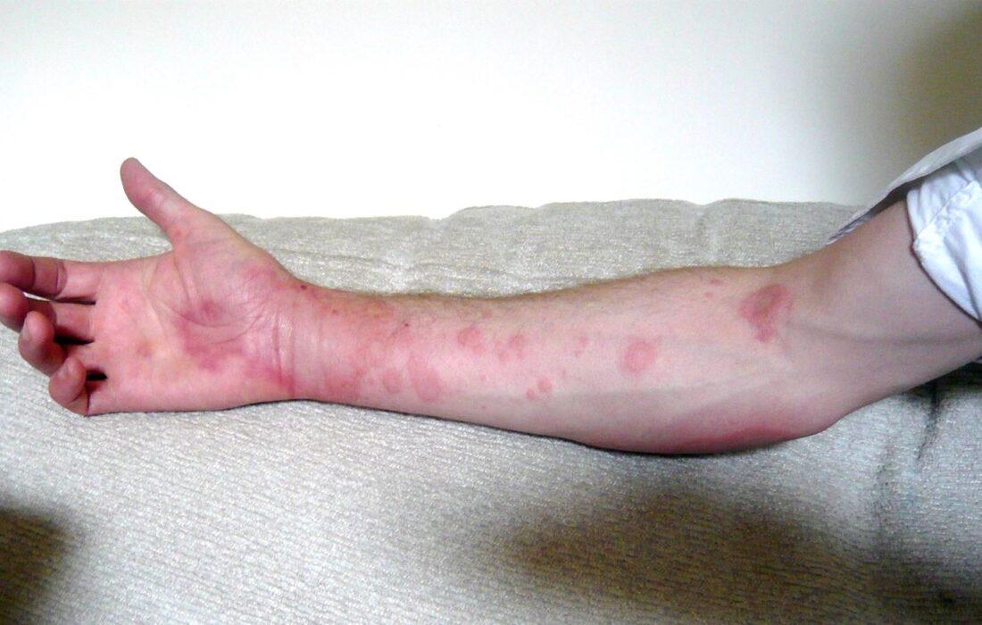 علایم و نشانههای حساسیت به پنیسیلین